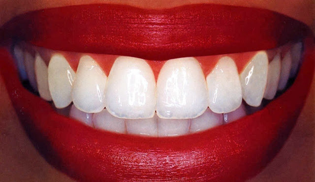 Way To Get Healthy And White Teeth